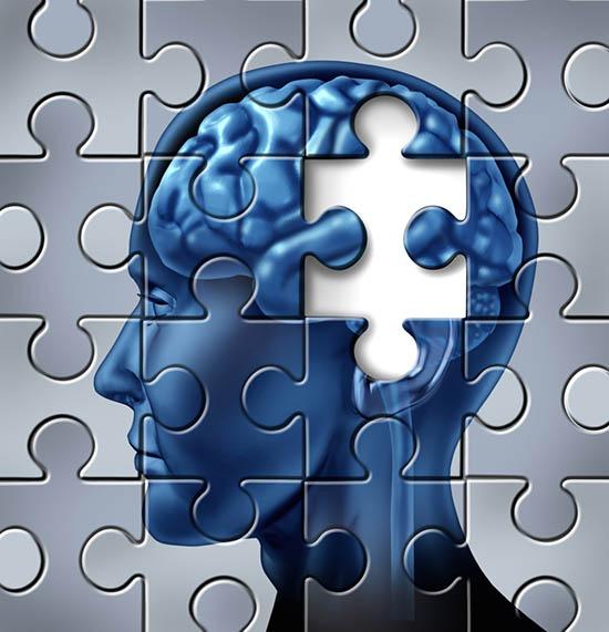 خطای ذهنی مدیران